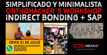 OrthoHacker´s Workshop Indirect Bonding (+ SAP) en la CDMX el 21 de julio
