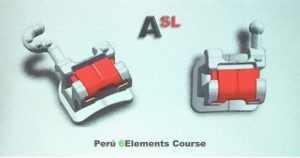 Proximamente tendremos el bracket de autoligado Andrews SL (ASL)