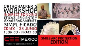 OrthoHacker´s Workshop Indirect Bonding en CDMX el 23 de junio