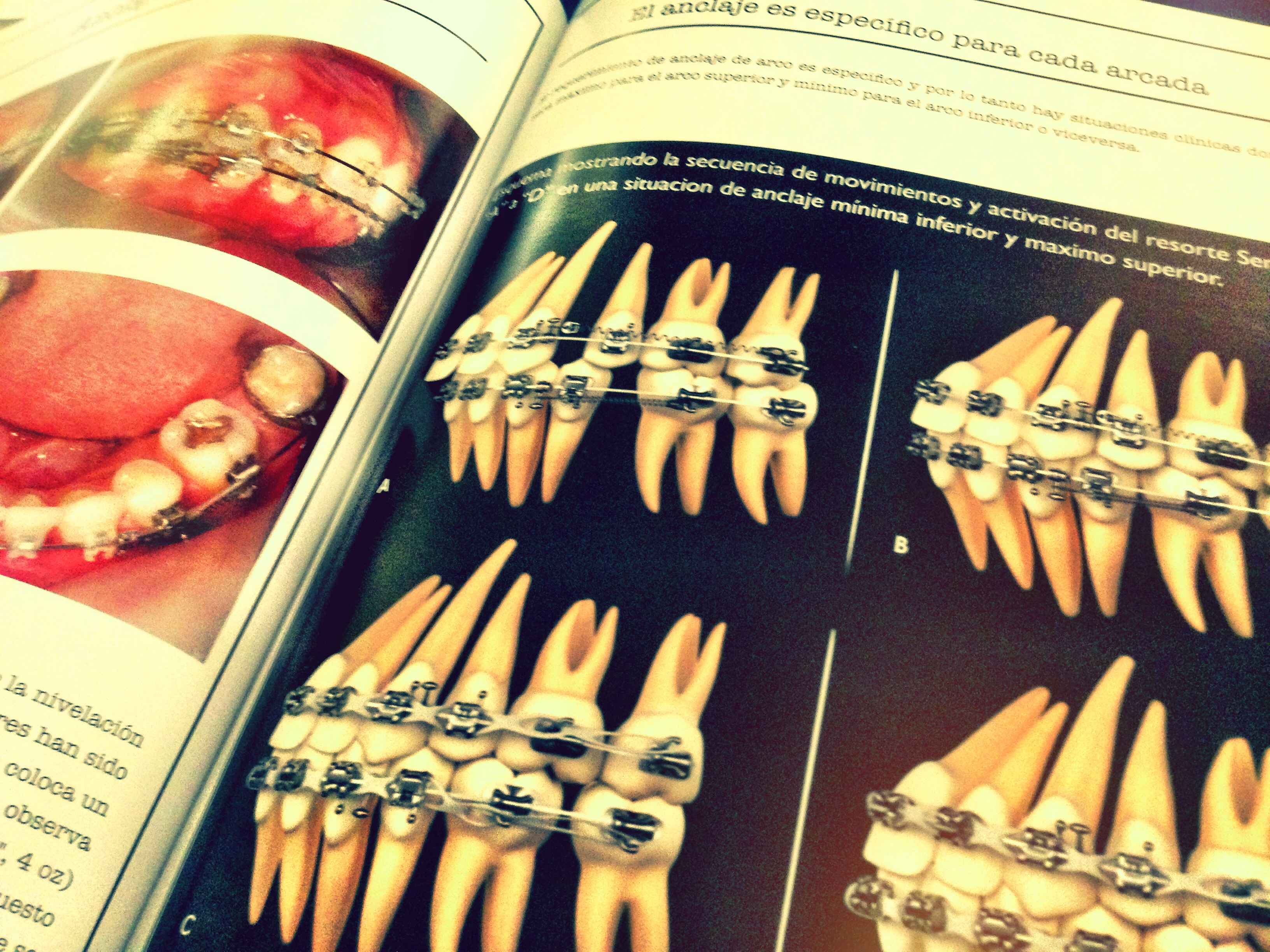 Reseña del libro Complete Clinical Orthodontic (Antonino G. Secchi)