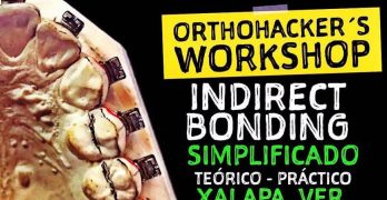 Aparten agenda 5 de mayo OrthoHacker´s Workshop Indirect Bonding en Xalapa