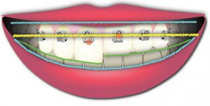 Colocación de los brackets para conseguir el Smile Arc Protection por Tom Pitts