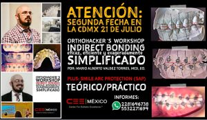 Se abre segunda fecha para el OrthoHacker´s Workshop Indirect Bonding, en la CDMX el día 21 de julio